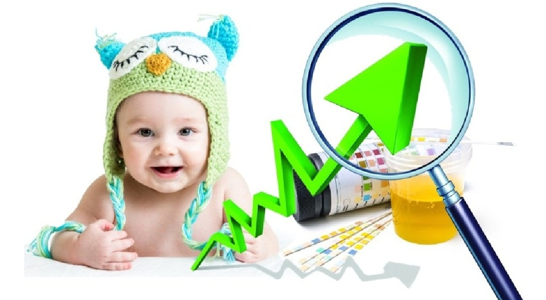 О чем говорит белок у ребенка в моче