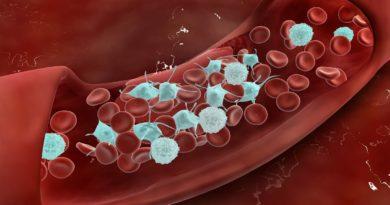 Тромбоцитопатия у детей