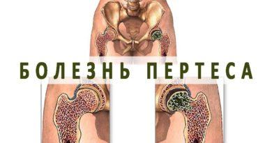 Болезнь Пертеса