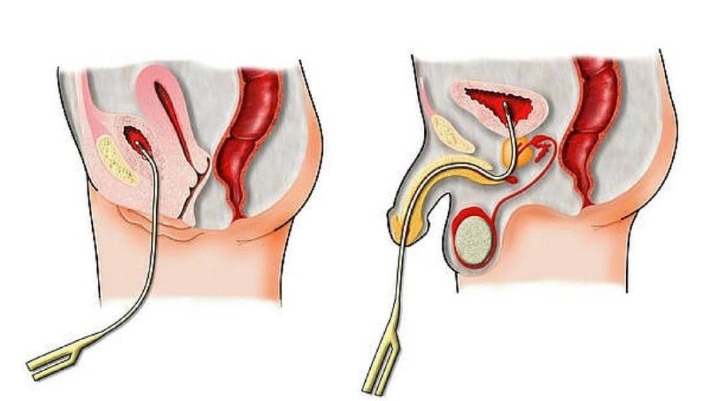 Как выполняется цистография