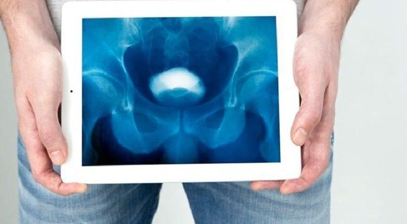 Цистография у детей