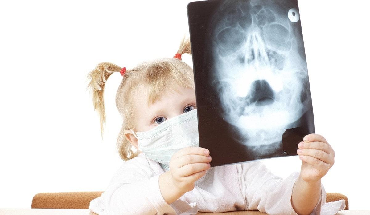 Рентген ребенку в год