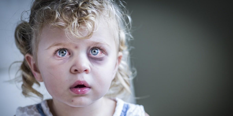 Как убрать синяки под глазами у ребенка