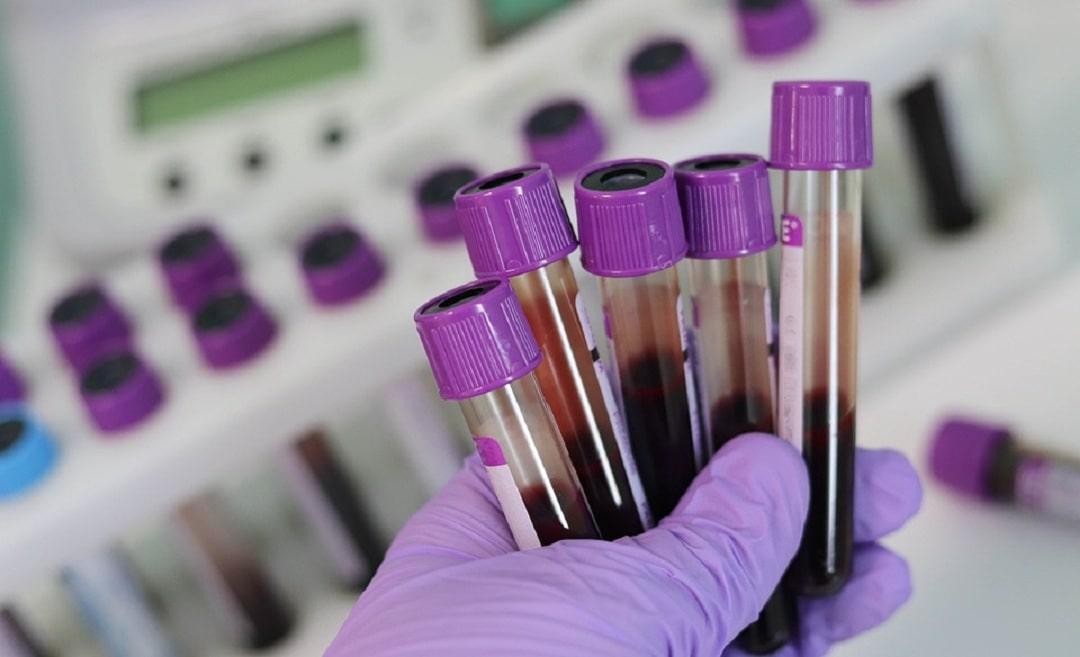 Нейтрофилы понижены в крови у ребенка или взрослого