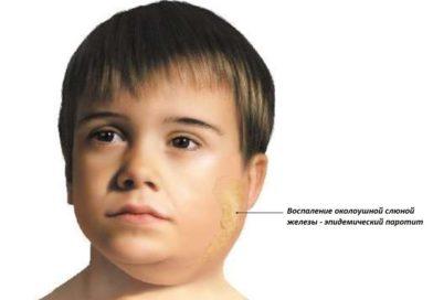 7 причин сделать ребёнку прививку от эпидемического паротита
