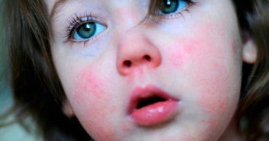 3 главных симптома скарлатины у детей