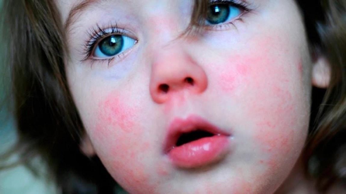 Скарлатина у детей: 3 основных симптома, методы лечения, профилактика
