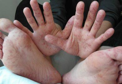 6 заболеваний, которые вызывает вирус Коксаки у детей и взрослых